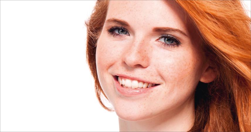 Bild Frau mit Hauttyp 1, sehr helle Haut